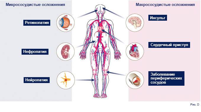 Ascensia Diabetes Care - МОЙ ДИАБЕТ